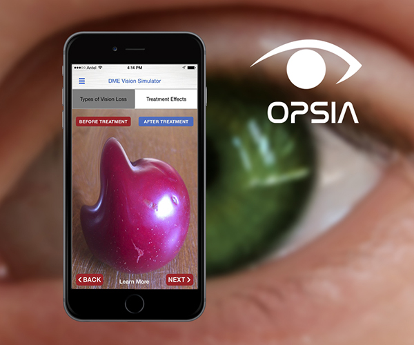 Mobile App For Vision Loss Prevention <br> Developed the first mobile application OPSIA designed to simulate vision loss from diabetic eye disease to encourage preventative screening and early intervention.https://angio.org/